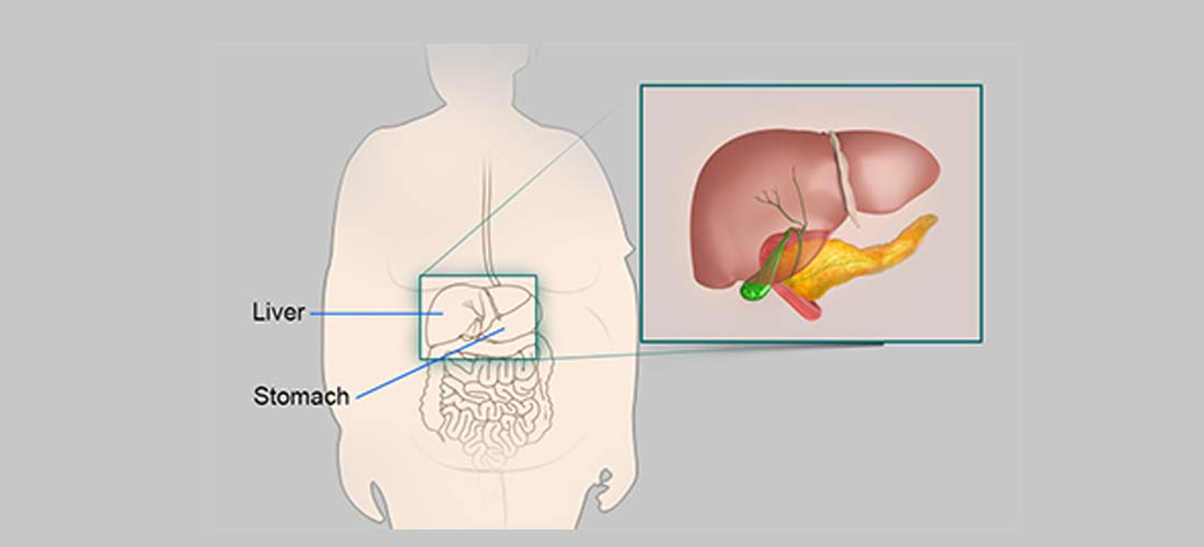 Obesity amplifies genetic risk of nonalcoholic fatty liver disease img