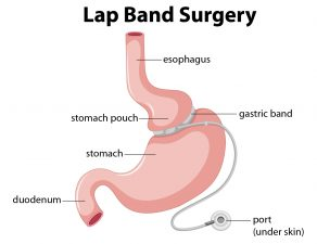 Lap-Band Surgery Dallas