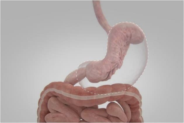 A Brief Guide To Endoscopic Sleeve Gastroplasty