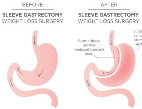 Sleeve Gastrectomy in Dallas: What to Expect & How to Prepare