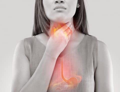 Understanding GERD: Symptoms, Causes, and Complications