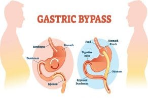 6 Major Health Benefits of Gastric Bypass Surgery