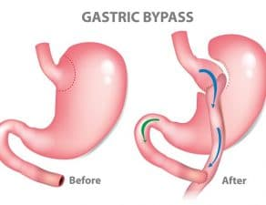 All You Need to Know About Roux-en-Y Gastric Bypass